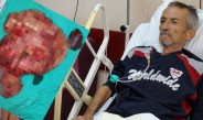 Midesinden 9 buçuk kiloluk tümör çıktı